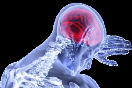 Udar mózgu w czasie pandemii - reaguj!